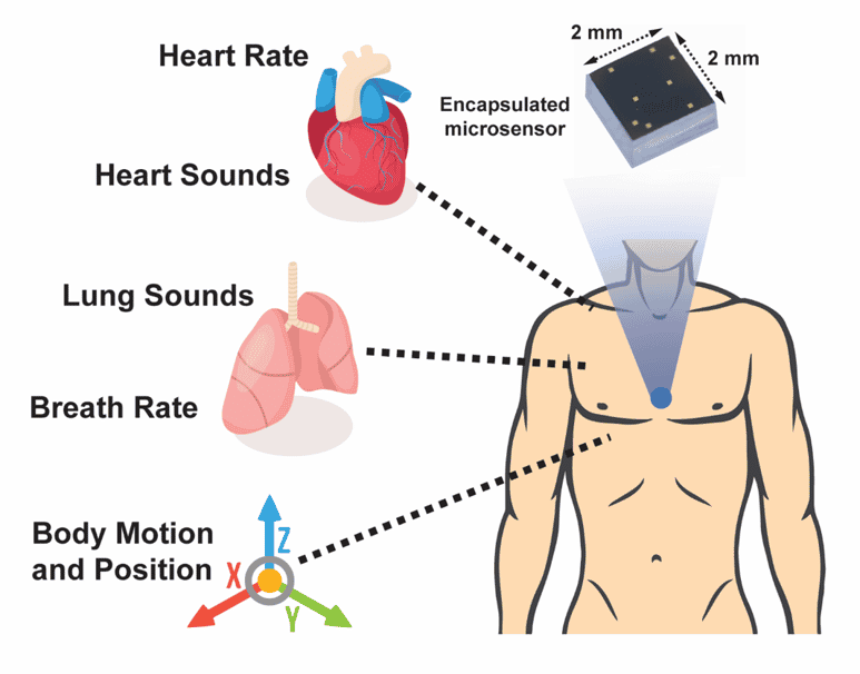 Hermetically-sealed sensor with nanogaps for cardiopulmonary health monitoring